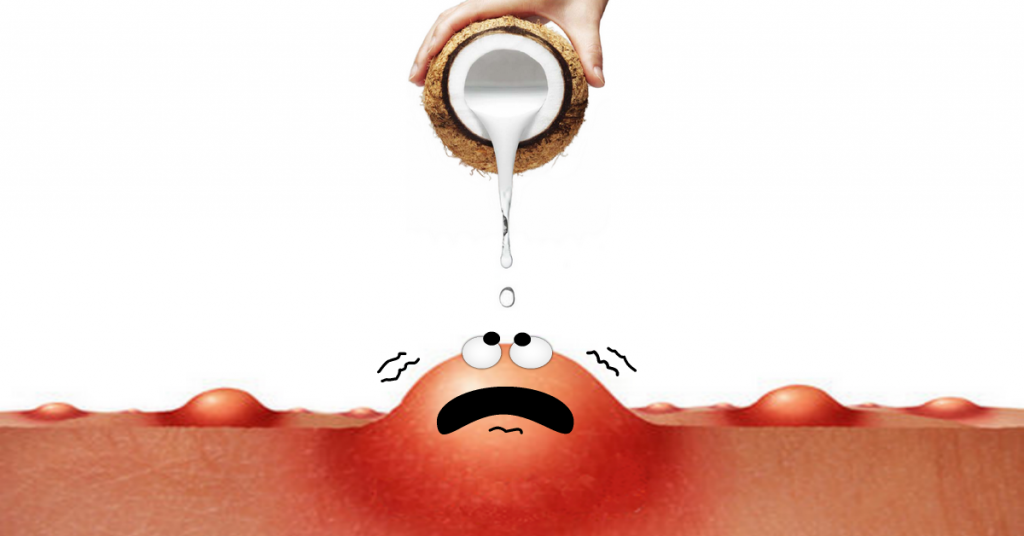 Hand pouring coconut oil over a large pimple that shivers with fear